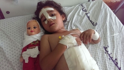 Shaymaa_al-Masri,_five_years_old,_at_a-Shifaa_Hospital,_Gaza._Shaymaa_was_injured_when_her_uncle's_house_was_bombed_in_the_early_afternoon_of_9_July_2014